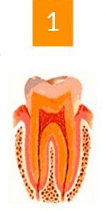 gingivite a avignon cabinet richard garrel soin de gencive et d implant dentaire a avingon dans le vaucluse
