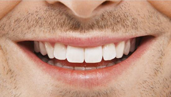 Facette a avignon cabinet richard garrel soin de gencive et d implant dentaire a avignon dans le vaucluse