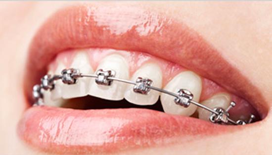 orthodontie a avignon cabinet richard garrel soin de gencive et d implant dentaire a avignon dans le vaucluse